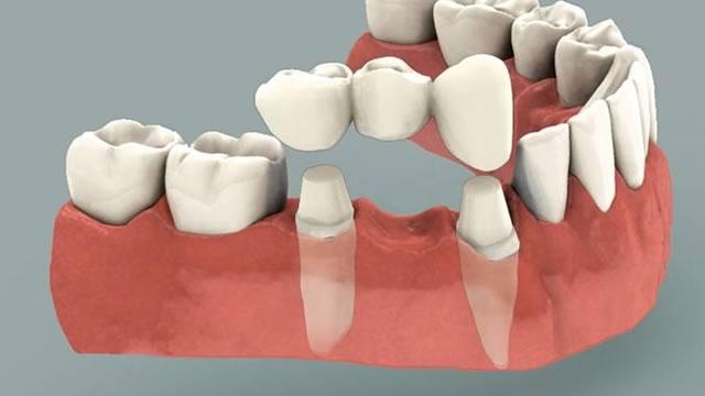 Новинки в стоматологии протезирование зубы